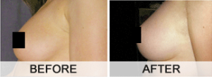 total-curve-before-and-after-photos