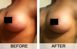 total-curve-before-and-after-pictures
